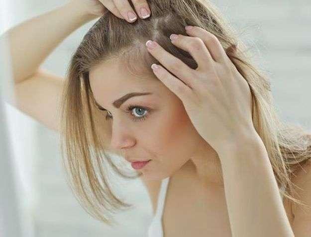 peinado para disimular las entradas en mujeres